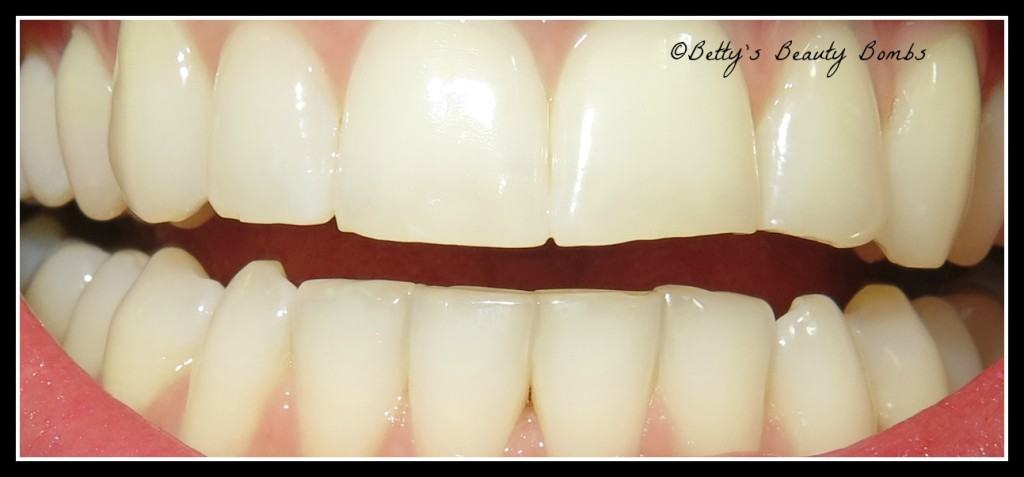 how-to-whiten-teeth-at-home-